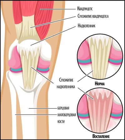 тендит колена