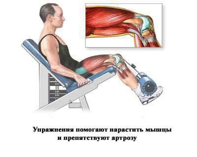 упражнения препятствующие артрозу
