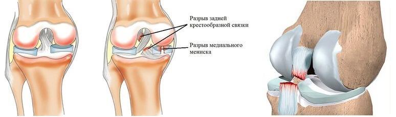 Какие симптомы когда выскакивает коленный сустав человека мазь цель т для суставов и отзывы