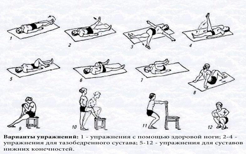 Упражнения для восстановления колена после перелома