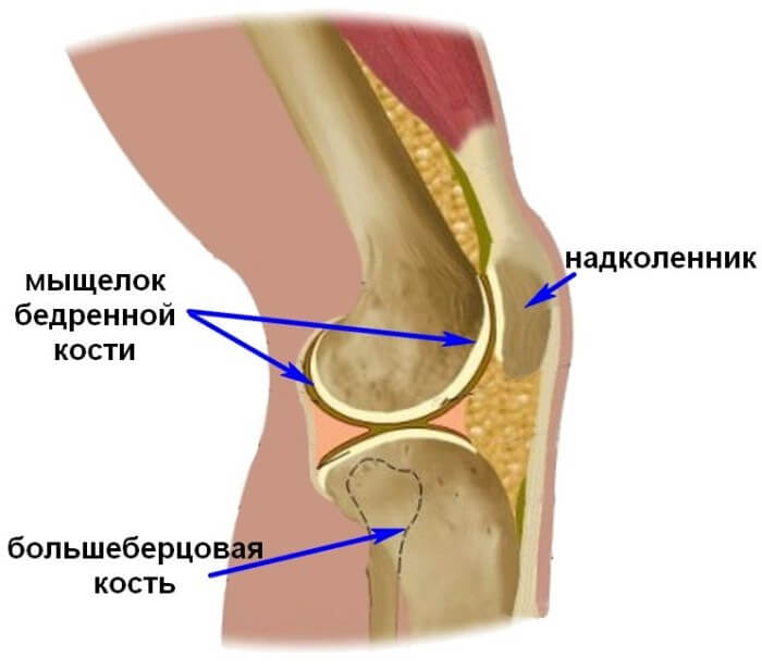 Перелом коленной чашечки и мыщелка коленного сустава