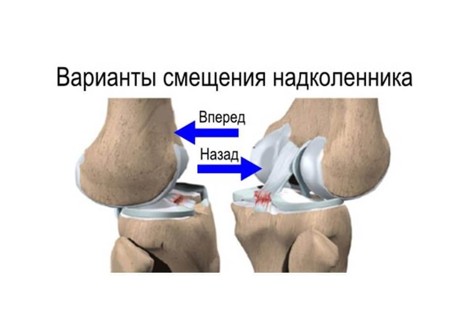 Виды смещения коленного сустава