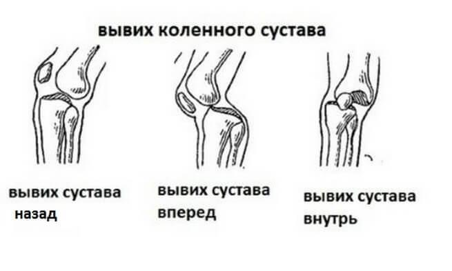 Повреждение коленного сустава.первая помощь эффективное лекарство от болей в суставах