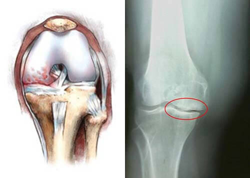 остеофиты на суставе колена