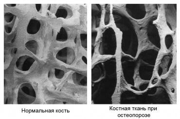 на фото изображена кость при остеопарозе