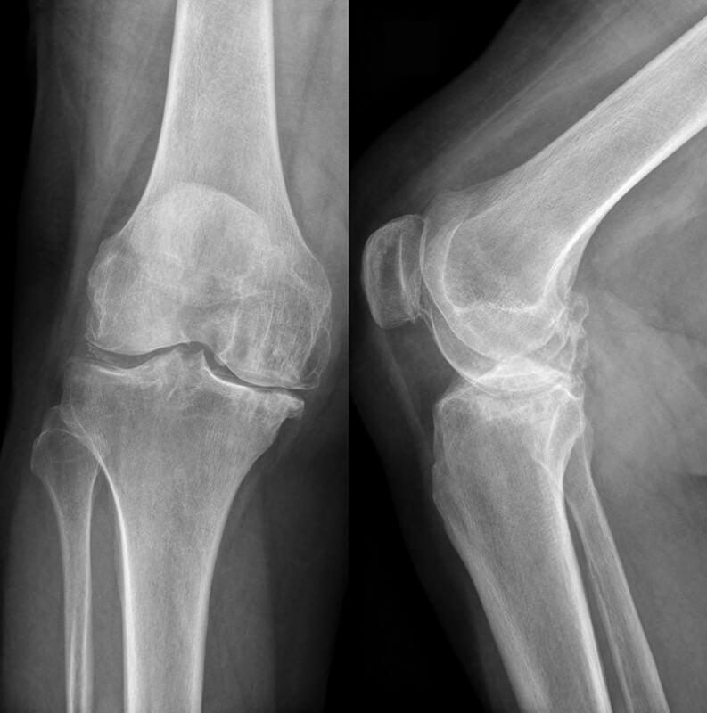 Лечение трещина в коленном суставе если болит колено делать