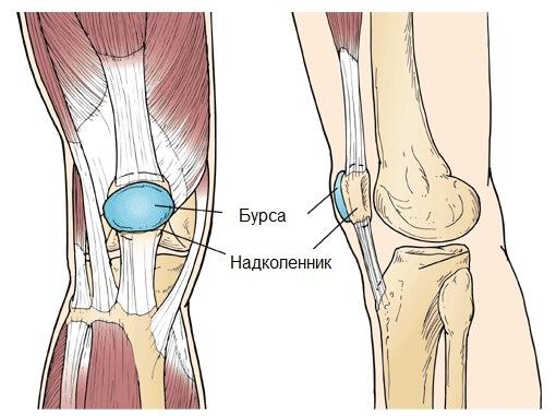 на фото изображен бурсит коленного сустава