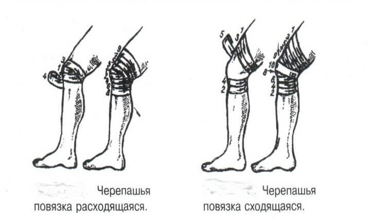 Позиции бинта при наложении черепашьей повязки на коленный сустав упражнения для разработки подвижности коленного сустава
