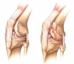коксартроз коленных суставов
