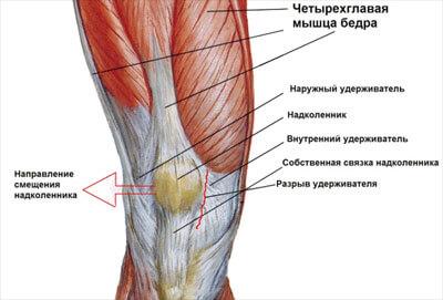 Схема строения колена