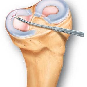 Трещины коленного сустава нелоная болезнь суставов или костей