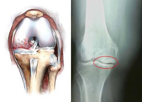 на фото изображены остеофиты в коленном суставе