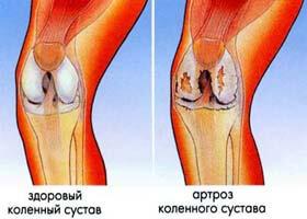 на фото изображен артроз коленного сустава