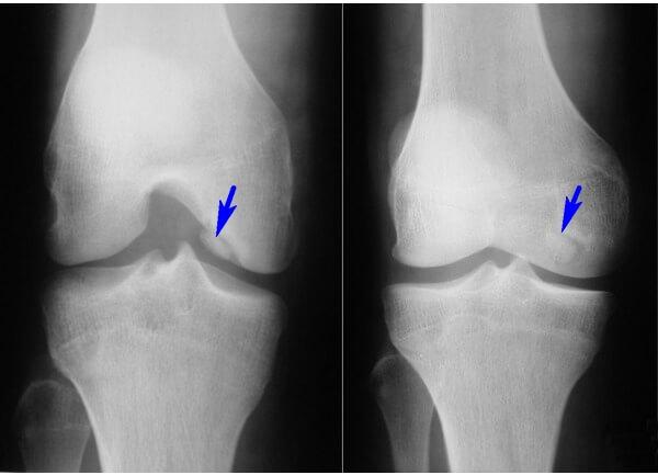 болезнь кёнига коленных суставов