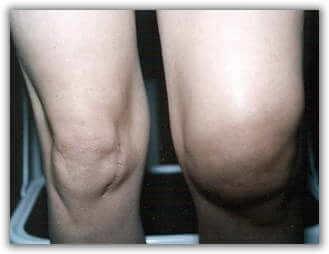опухоль коленного сустава