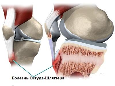 на фото изображена болезнь Осгуда-Шляттера