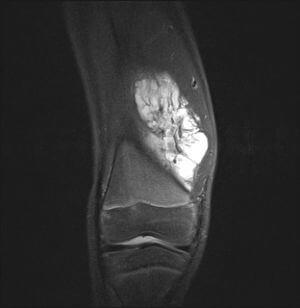 на фото изображен снимок синовиомы колена
