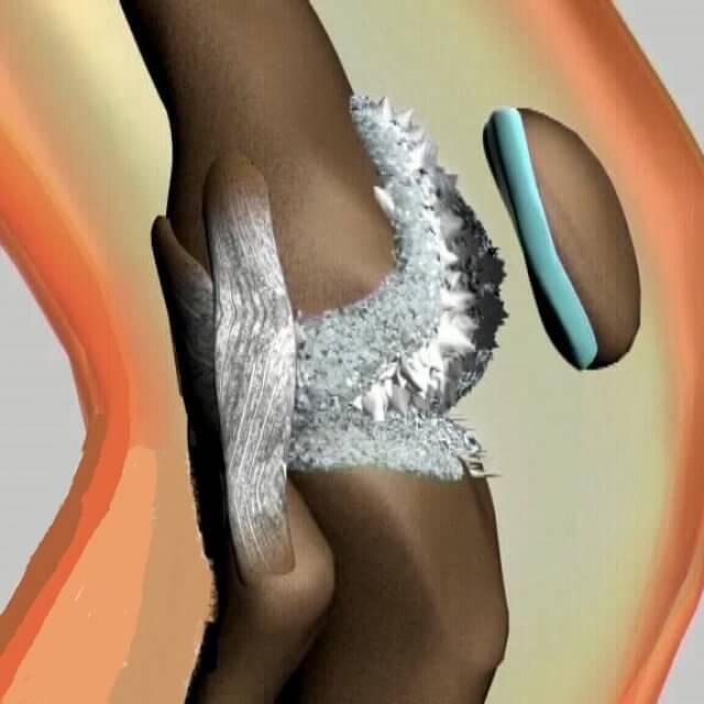 соли в коленный суставах