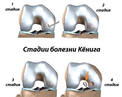 стадии болезни кенига