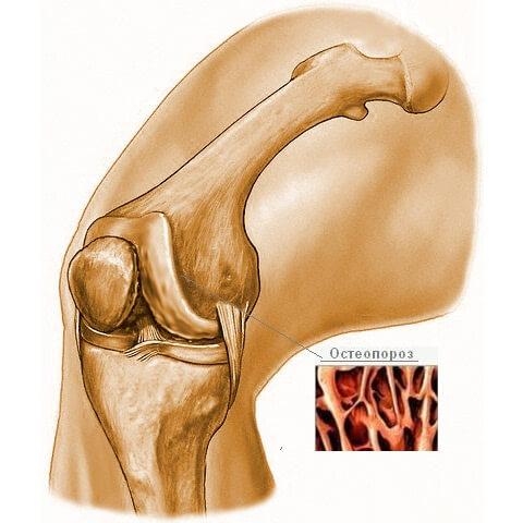 остеопароз коленного сустава