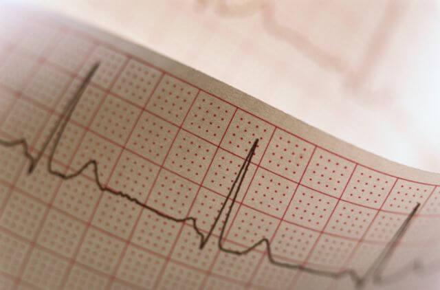 кардиограмма для профилактики ревматизма колен