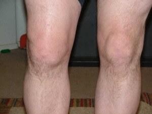 на фото изображена подагра коленного сустава