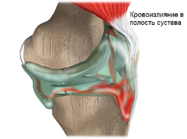 гемартроз коленного сустава