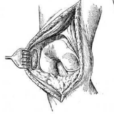 артротомия колена