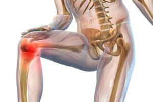артрит коленного сустава причина анкилоза