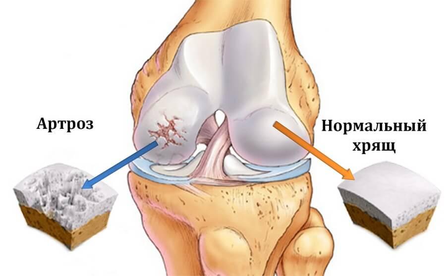 автроз коленного сустава