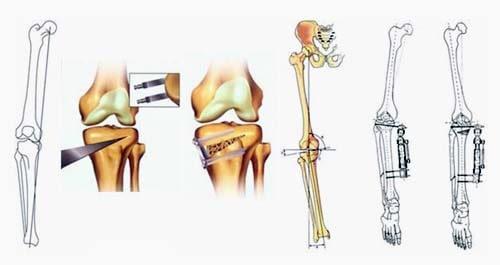 Корригирующая остеотомия колена