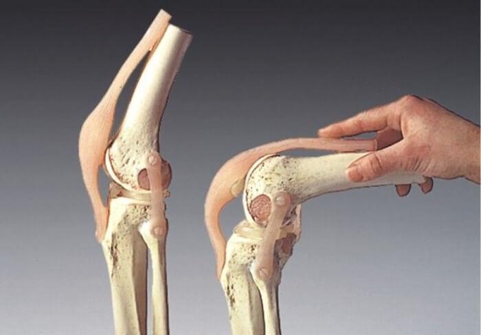 Реабилитация после удаления экзостоза коленного сустава как часто можно ставить дипроспан в коленный сустав