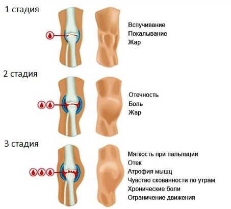 стадии развития гемартроза колена