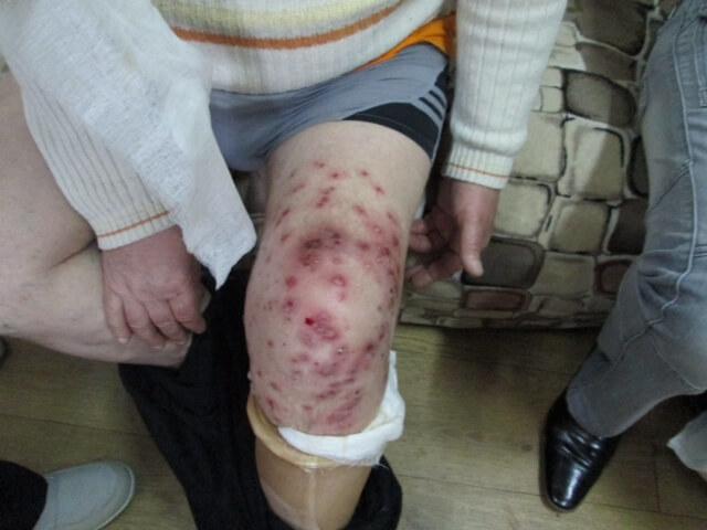 гангрена коленного сустава