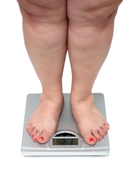 Избыточный вес причина сужения суставов