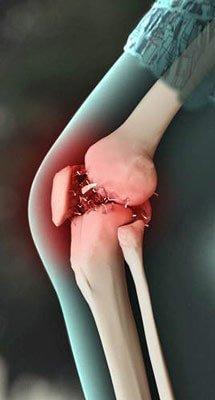 шипы в коленных суставах