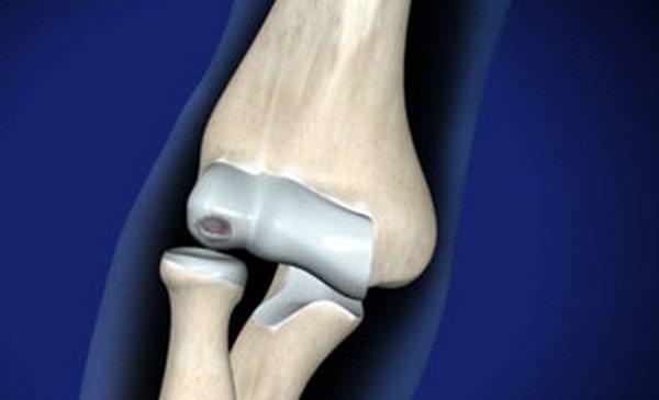 повреждение колена суставной мышью