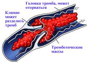 осложнения варикоза под коленом