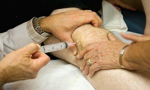 введение в колено глюкокортикостероидных препаратов
