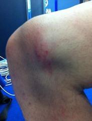 Дисторсия колена