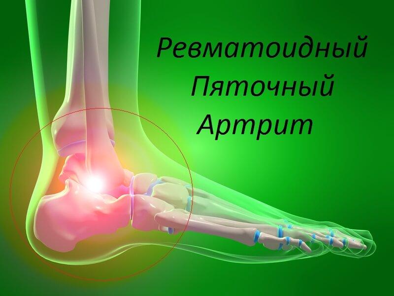 ревматоидный пяточный артрит