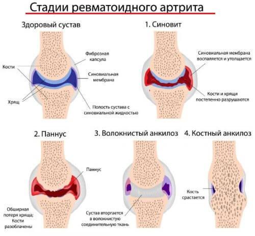 ревматоидный автрит пальцев