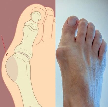 Артроз большого пальца руки симптомы и лечение