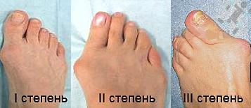 стадии развития артроза пальца
