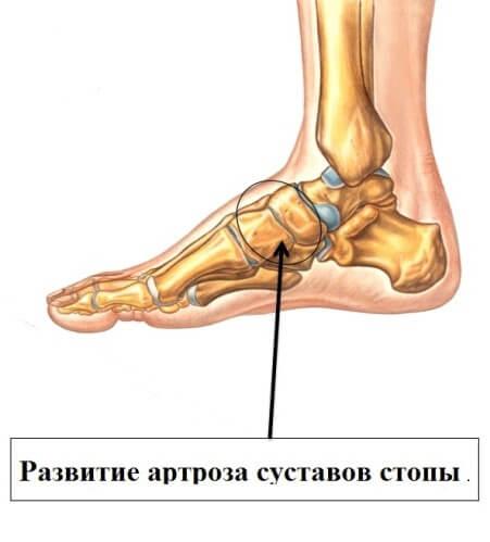 Лечение артроза сустава стопы рязань узи голеностопного сустава