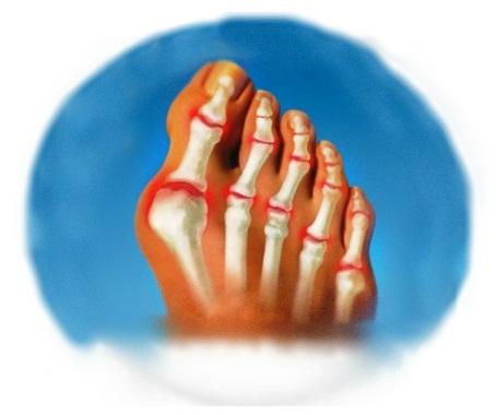 воспаление косточки на большом пальце