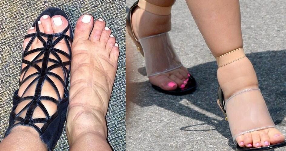 пример отека ног