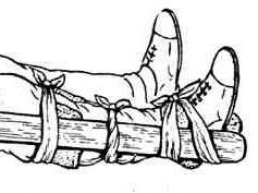 шина при переломе кости голени