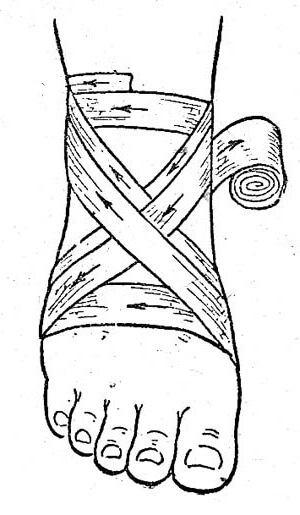 восьмиобразная повязка на стопу