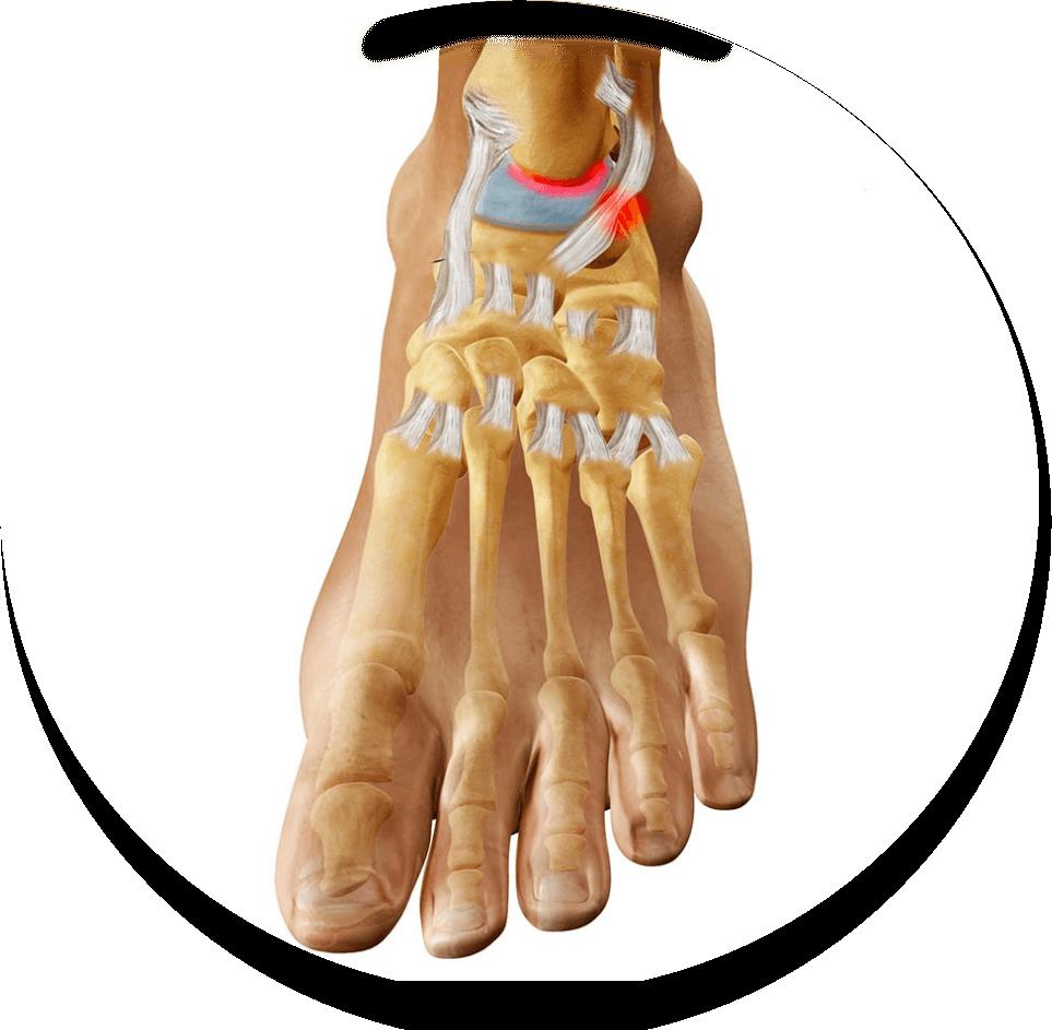 Артроз голеностопного сустава лечение в домашних условиях